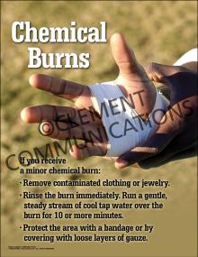 Chemical Burns Poster